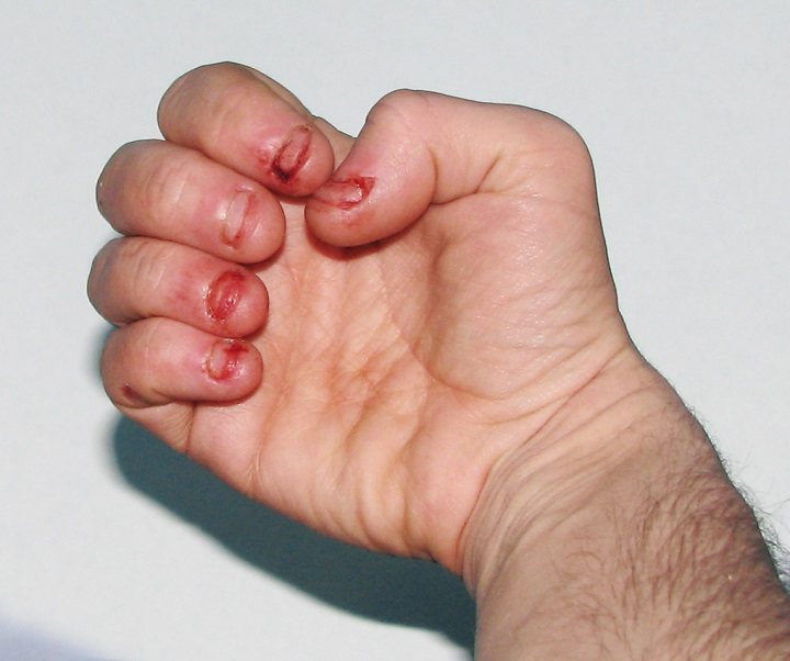 Signs of Dermatophagia